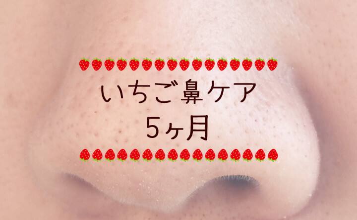 不動の角栓がついに-いちご鼻ケア日記5ヶ月-