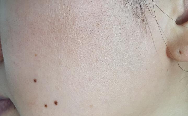 ゆる肌断食開始から2年9ヶ月経過した肌