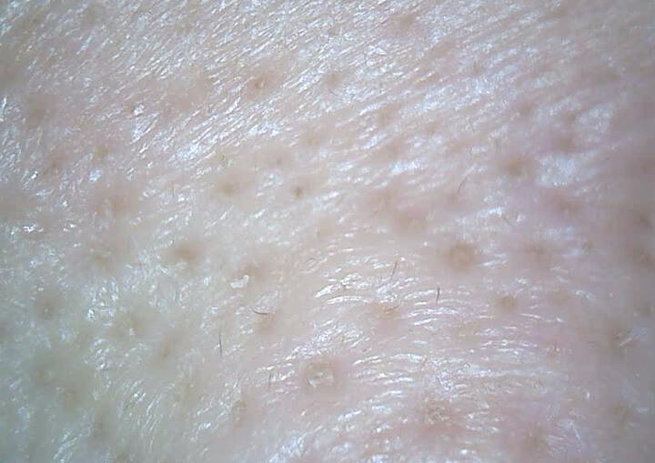 鼻の際マイクロスコープ10ヶ月目3週